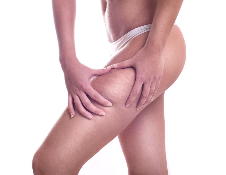 traitement de la cellulite soin esthétique du corps à Nice et Cannes